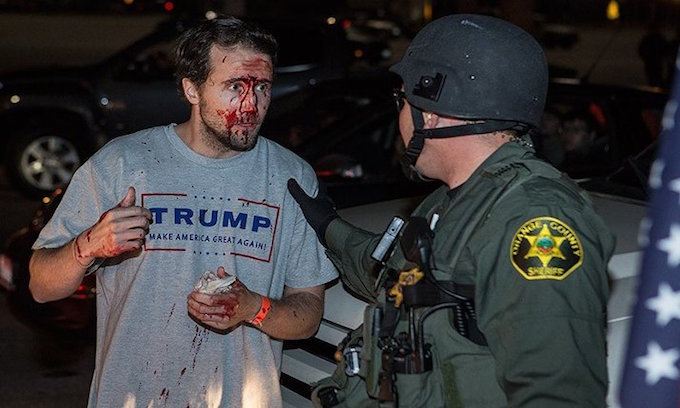 trump_supporter_bloody2